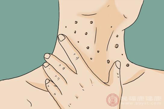 脖子長痘痘的原因包括毛囊炎、痤瘡和絲狀疣等