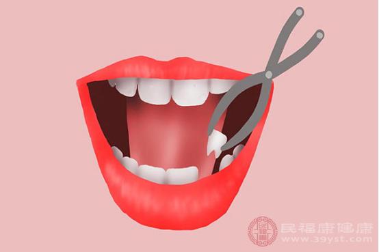 拔牙后注意事項包括及時止血、暫不離開醫院、不可吐口水、不可咀嚼食物、適當服藥