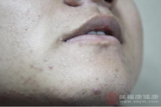 痘痘所生長的部位可以反映出發病的機制以及過程