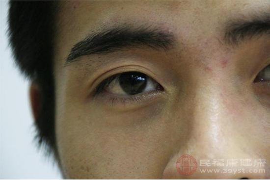 眼皮跳的人可以嘗試轉動眼球或者按摩酸脹部位
