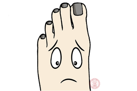 大部分灰指甲患者都可以口服合適的藥物治療