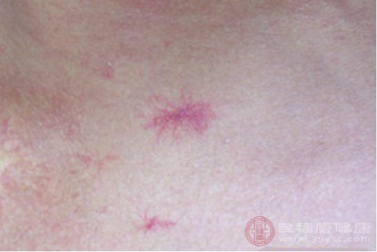 血痣是指部分細小血管纖維變性后突出表面形成的皮膚損傷