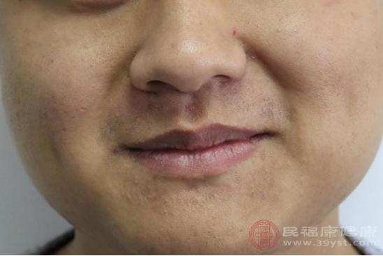 嘴角起痘痘的原因包括病毒感染、毛囊炎和面部痤瘡等