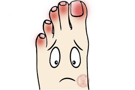 有些人可能會在腳趾縫里面長有小水泡