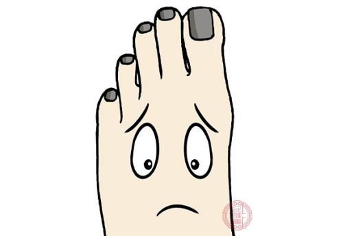 灰指甲主要是由于真菌感染導致的疾病
