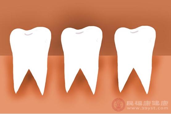 干槽癥患者比較典型的臨床癥狀,就是會有牙周以及牙床部位出現劇烈疼痛