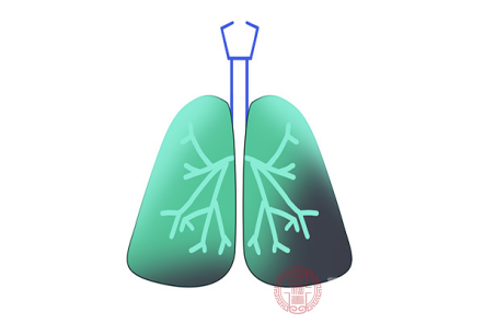 由于長期吸煙以及周圍環境污染嚴重的情況下,是會誘發肺癌疾病