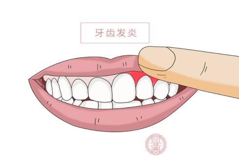 智齒主要發生在18-30歲之間青年人群