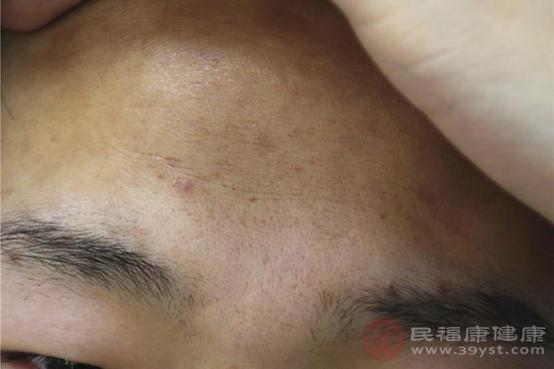 長痘痘是很常見的面部肌膚問題,一般不同部位痘痘所代表疾病都不一樣