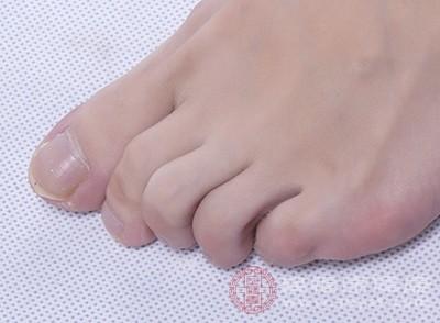 得了腳氣的人,一般腳趾間會出現水泡