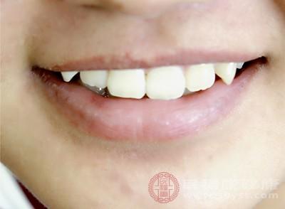 牙痛的性质与急性根尖周围炎类似