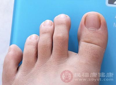 一些患有痛風的患者在半夜會有腳趾、肘關節