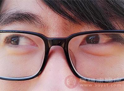 热毛巾敷眼部,可以帮助消除黑眼圈