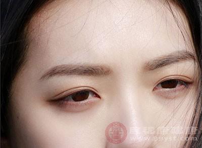 结膜充血较着,能够或许会致使眼睛红血丝很是多
