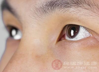结膜充血明显,可能会导致眼睛红血丝非常多