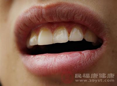 蛀牙怎么办 组织充填法能治疗这个病
