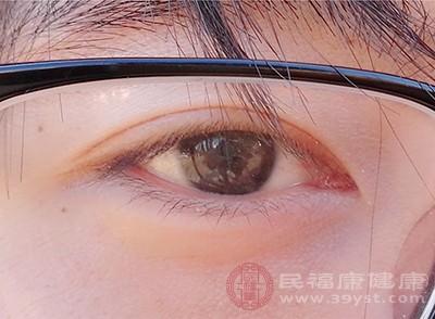 结膜炎怎么办 保持眼部清洁可以缓解这个疾病