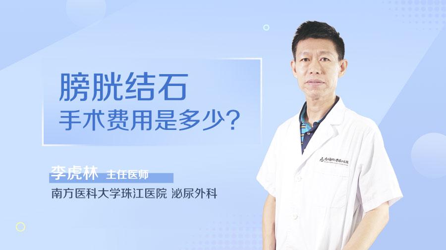 膀胱结石手术费用是多少