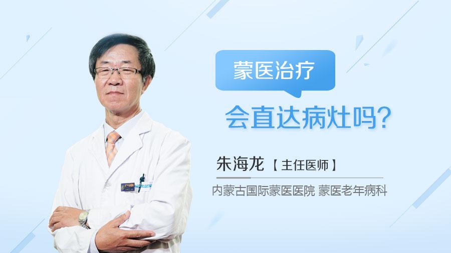 蒙医治疗会直达病灶吗