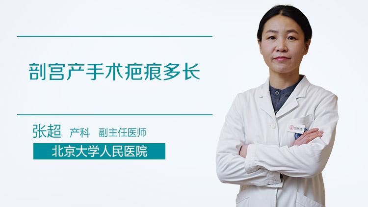 剖宫产手术疤痕多长