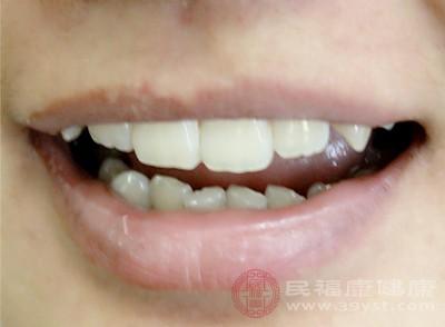 牙齦出血怎么辦 及時補充營養能治這個病