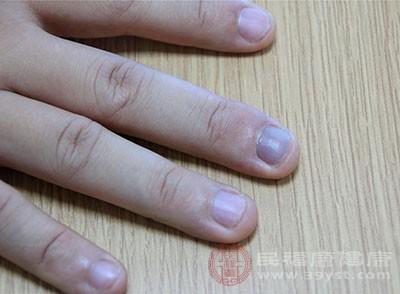 灰指甲的危害 得了这个病竟会成为传染源