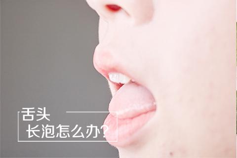 舌头长泡怎么办