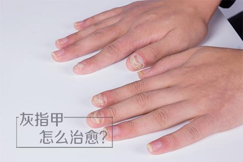 灰指甲怎么治愈
