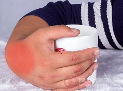 痛风怎么办 冷敷的方法能快速缓解这个症状