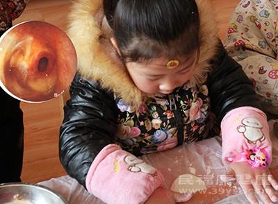 孩子腹瀉怎么辦 這樣按摩肚子可以緩解腹瀉
